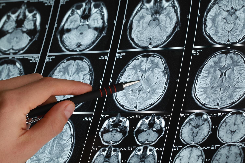images cérébrales